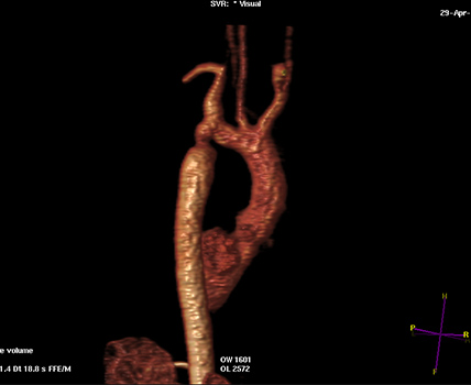 Στένωσης Πνευμονικής Αρτηρίας